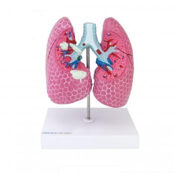 Model chorób płuc...